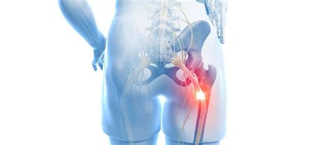 Optimizing Treatment for Patients With Chronic Sciatica
