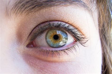 My friend's eyes have central heterochromia and limbal